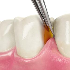 gum-disease-chip-ins_1