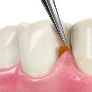 gum-disease-chip-ins_3