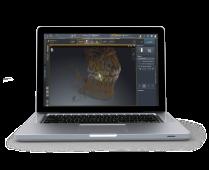 screenshot-endo_laptop